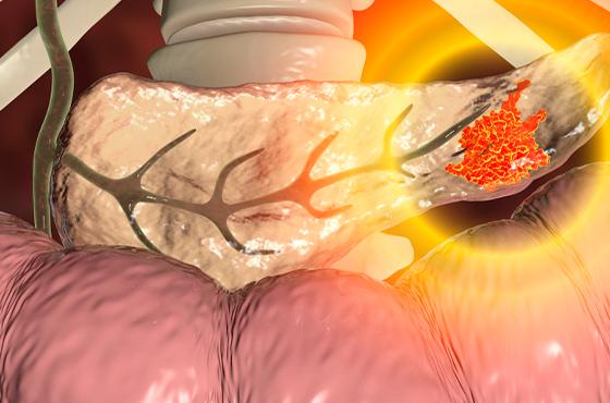 Cirurgia do pâncreas